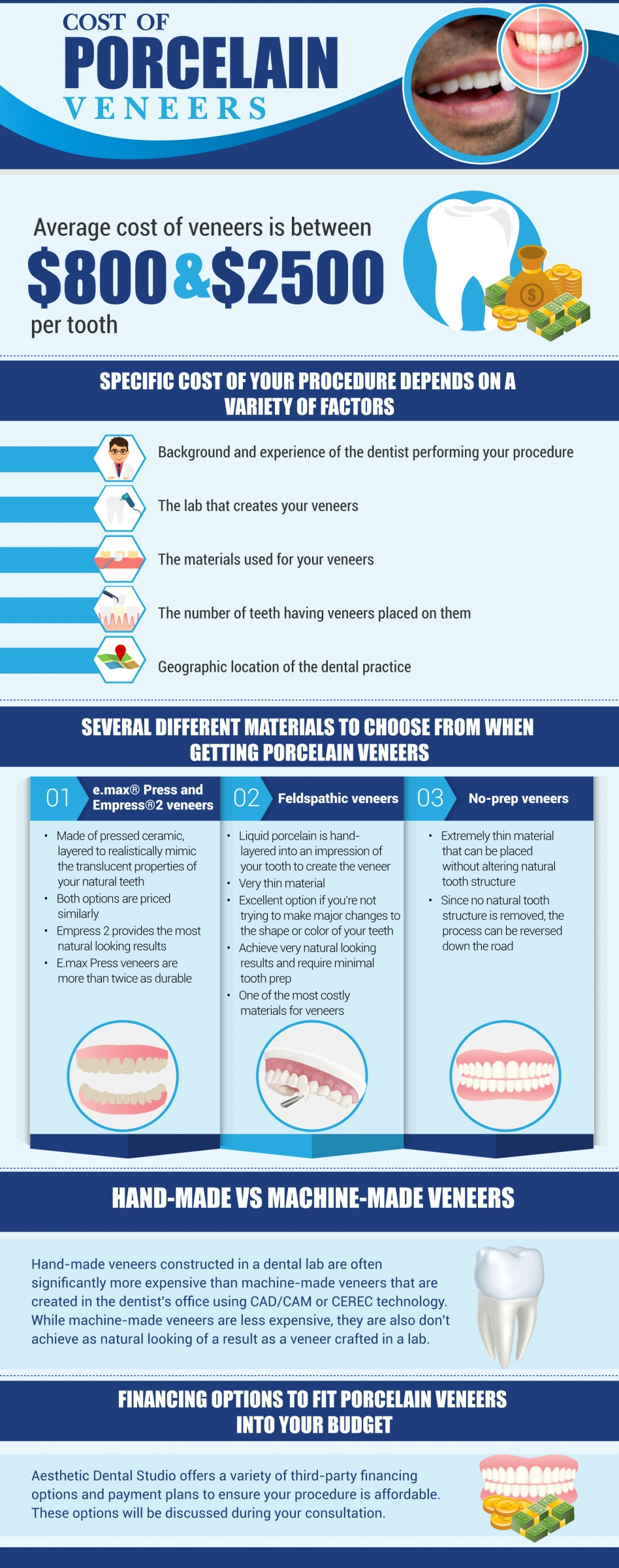 cost of porcelain veneers infographic