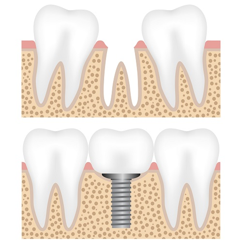 Implant dentist in Airdrie