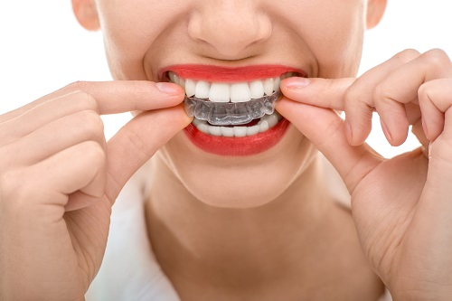Invisalign services in Calgary AB