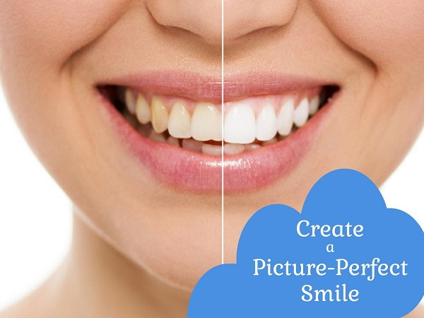 Porcelain Veneers Benefits - Calgary