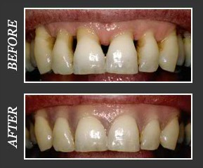 Cosmetic Gum Masking Calgary - Before and After