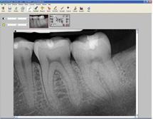 Calgary Digial X-Rays Image