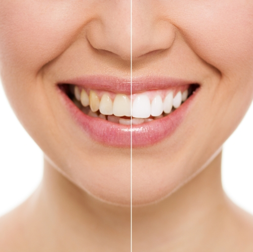 Whitening your teeth with veneers in Calgary