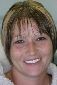 Smile Makeover Patient After- Kimberly