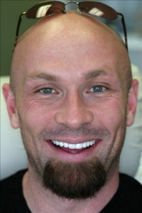Mclain After a Smile Makeover