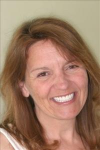 Smile Rejuvenation Patient After Calgary