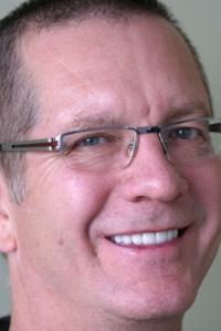 Smile Rejuvenation Patient 2 After Calgary