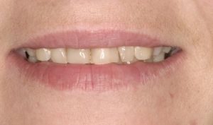 Close Up Smile Makeover Patient Before - Kimberly