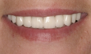 Close Up Smile Makeover Patient After- Kimberly