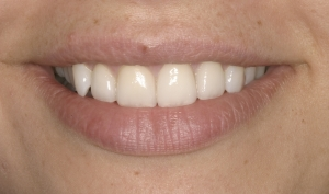 Christina After Porcelain Veneers Alberta