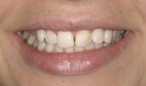 Christina Before Porcelain Veneers Alberta