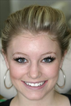 Invisalign Patient After - Kelsey