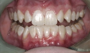 Invisalign Patient After Treatment - Kelsey
