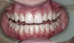 Invisalign Patient Before Treatment - Kelsey