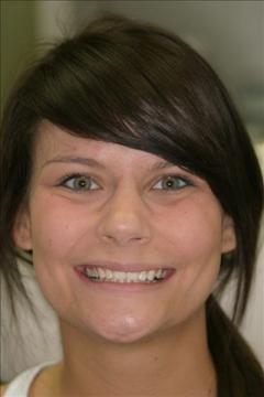 Clear Aligners Patient After- Megan
