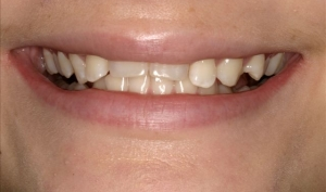 Clear Aligners Patient Before - Megan