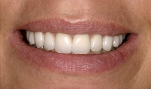 Patient After Smile Makeover Calgary