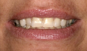 Patient Before Smile Makeover Calgary