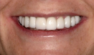 Smile Makeover Patient 2 After Calgary