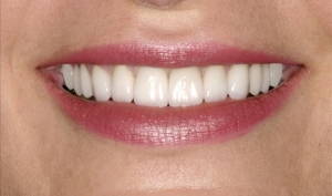 Close Up of Smile Makeover Patient After- Joanne