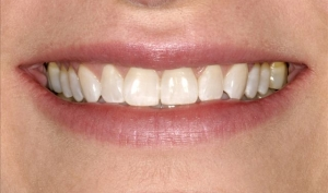Close Up of Smile Makeover Patient Before - Joanne