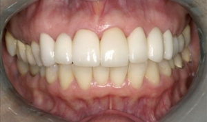 Close Up Smile Makeover Patient After - Joyce