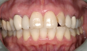 Close Up Smile Makeover Patient Before - Joyce