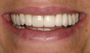 Alberta Smile Makeover Patient-Lisa After