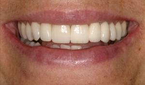 Alberta Smile Makeover Patient-Lisa After