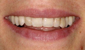 Alberta Smile Makeover Patient-Lisa Before