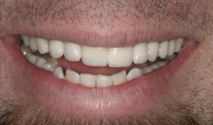 Calgary Patient-McIain After a Smile Makeover
