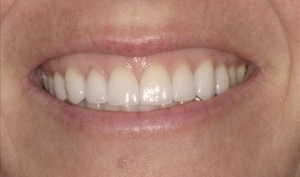 Close Up After Smile Makeover - Mimi