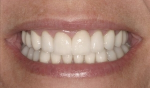 Smile Rejuvenation Patient After Calgary