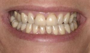 Smile Rejuvenation Patient Before Calgary