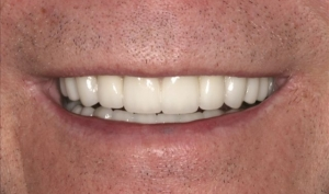 Smile Rejuvenation Patient 2 After Calgary