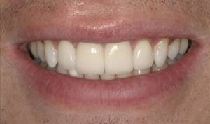 Patient After Porcelain Veneers Alberta