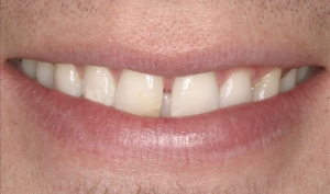 Patient Before Porcelain Veneers Alberta
