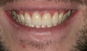 Matthew After Porcelain Veneers Alberta