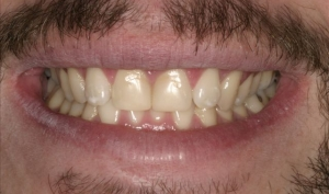 Matthew Before Porcelain Veneers Alberta