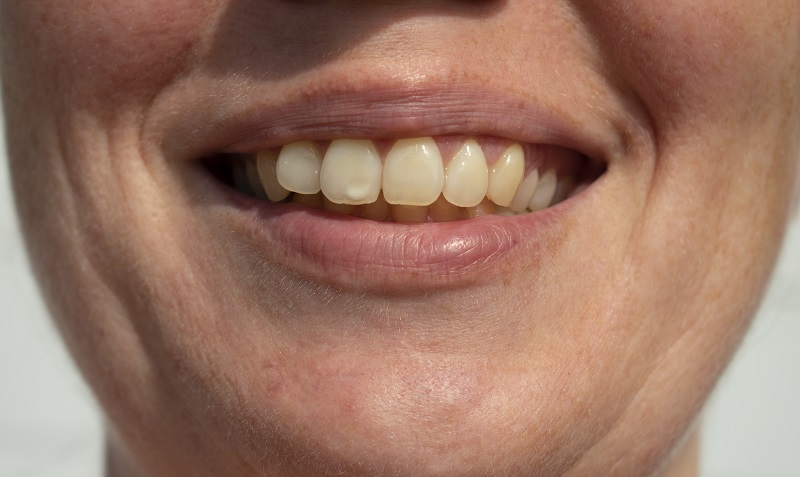 White spots on teeth before non-invasive treatment